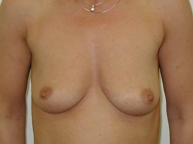 http://www.plastika-chirurgie.cz/media/prsa/a.jpg