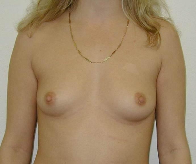 http://www.plastika-chirurgie.cz/media/prsa/b.jpg
