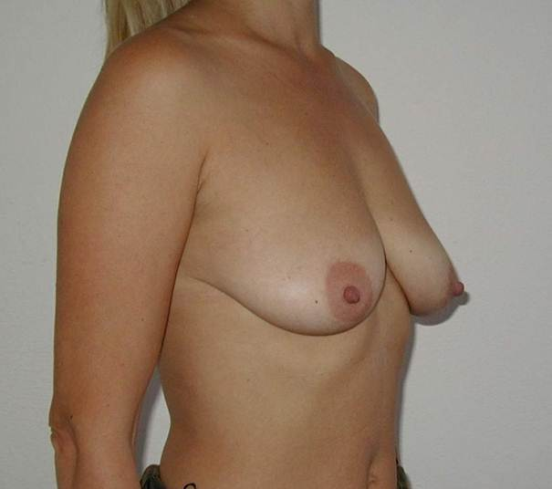http://www.plastika-chirurgie.cz/media/prsa/c.jpg