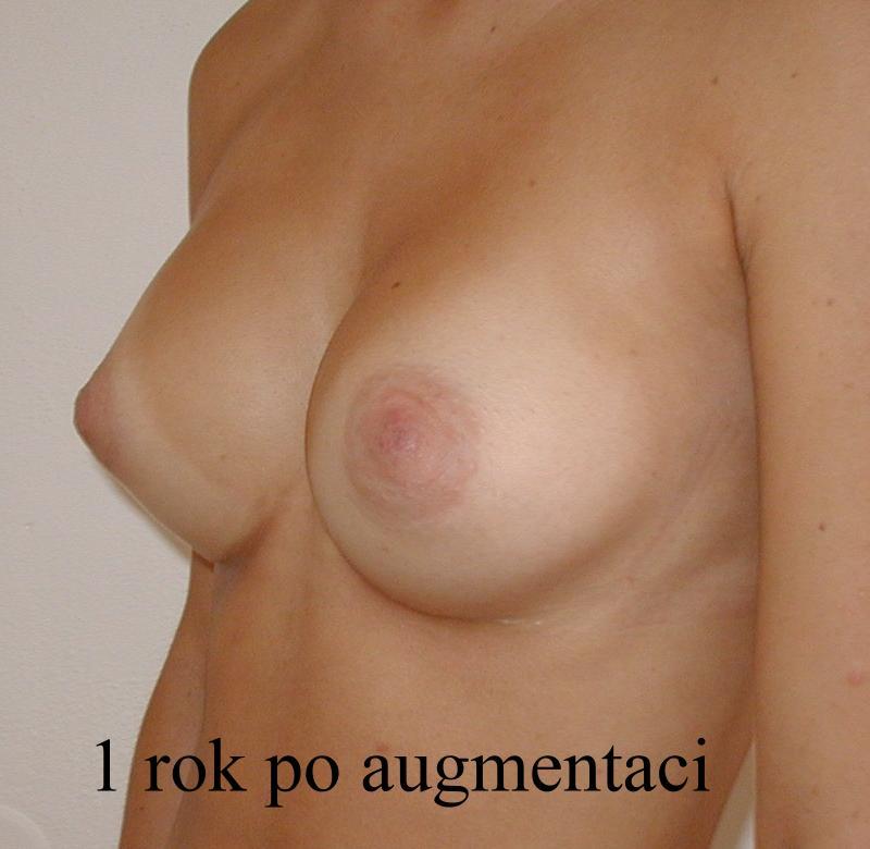 http://www.plastika-chirurgie.cz/media/prsa/d3.jpg