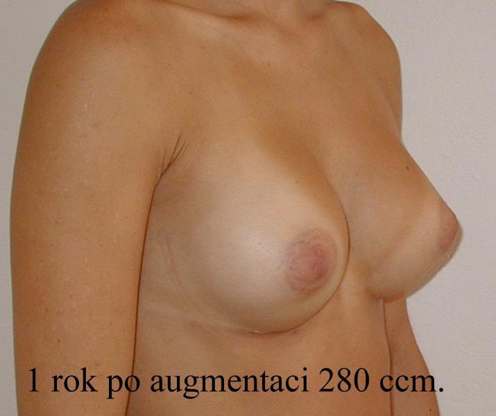 http://www.plastika-chirurgie.cz/media/prsa/d4.jpg